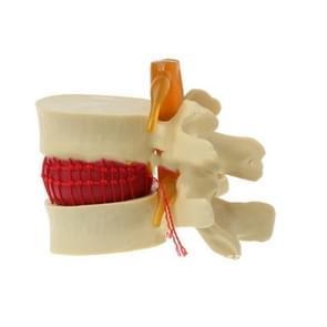 Menselijke lumbale disc Herniation demonstratiemodel orthopedische wervelkolom model (geel)